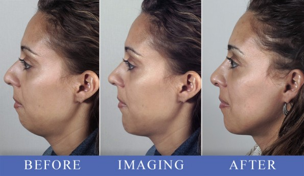 Woman\'s profile before, simulated with imaging, and after rhinoplasty