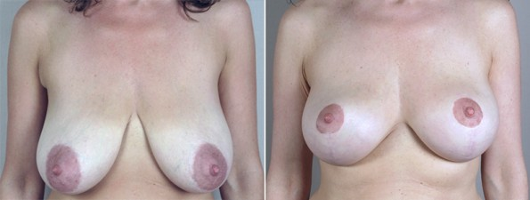 Woman\'s chest before and after breast lift surgery