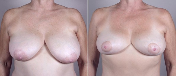 Front view of woman\'s chest before and after mommy makeover surgery