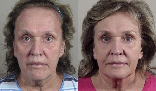 Woman before and after lower eyelid surgery