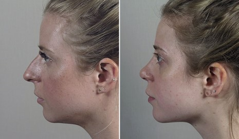 Profile of young female before and after rhinoplasty