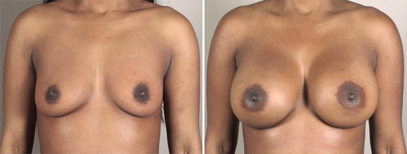 Front view of woman\'s chest before and after breast augmentation