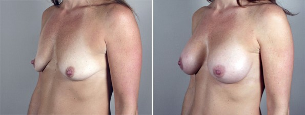 Side view of woman\'s chest before and after breast enlargement