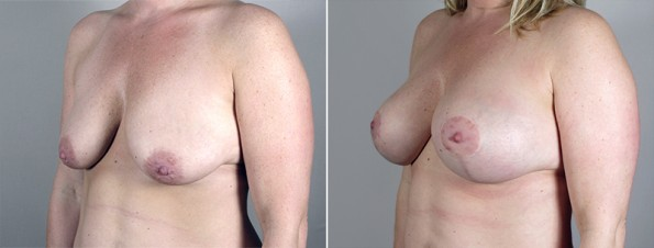 Side view of woman\'s chest before and after breast lift surgery