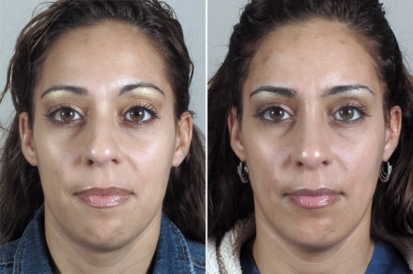 Front view of woman before and after rhinoplasty with chin augmentation