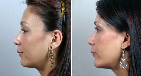 Chin Augmentation New Jersey Before and After
