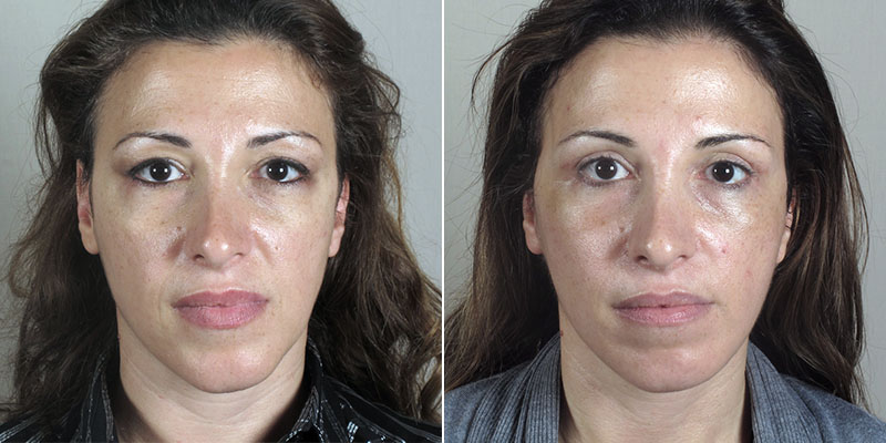 Woman before and after ulbleph with browpexy