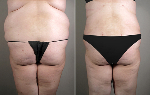 Back view of woman before and after lipoabdominoplasty