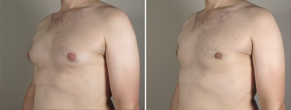 Side view of man\'s chest before and after male breast reduction