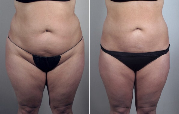 Front view of woman\'s abdomen before and after liposuction