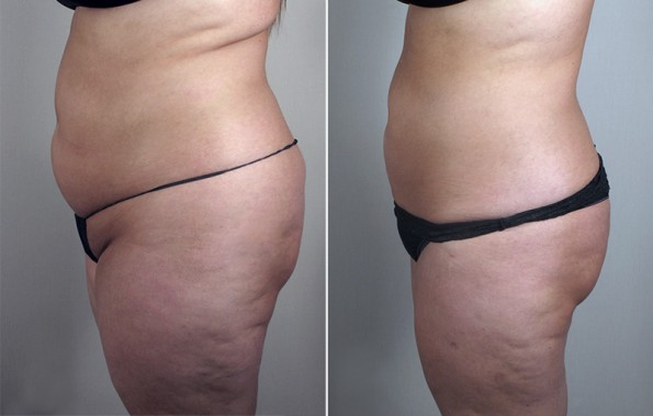 Side view of woman\'s abdomen before and after liposuction