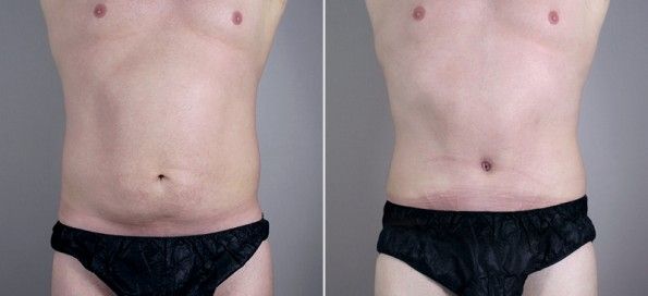 Front view of male patient before and after abdominoplasty