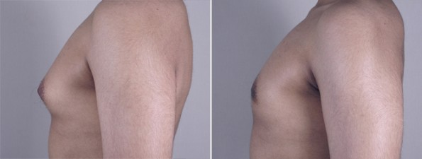 Side view of male patient before and after gynecomastia treatment