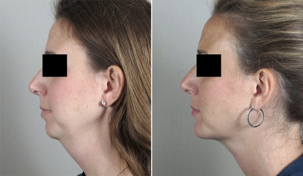 Woman\'s profile before and after chin augmentation