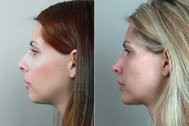 Profile of young woman before and after rhinoplasty