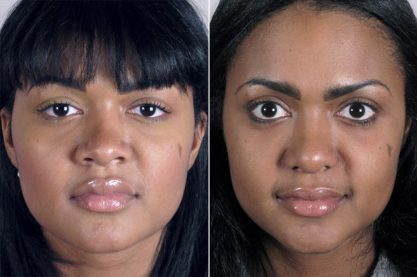 New Jersey Rhinoplasty Patient Before & After