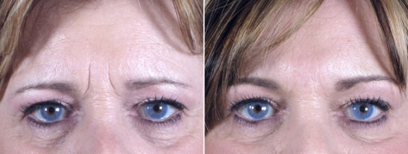 Woman\'s eyes before and after upper eyelid surgery