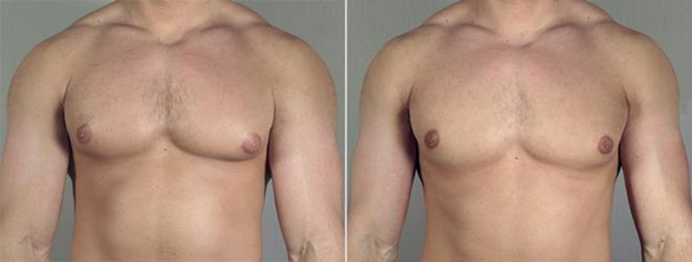 Scarless breast reduction for men