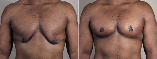 Front view of male patient before and after male breast reduction