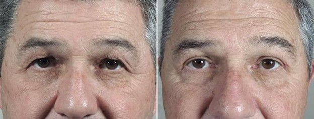 Male patient before and after eyelid surgery