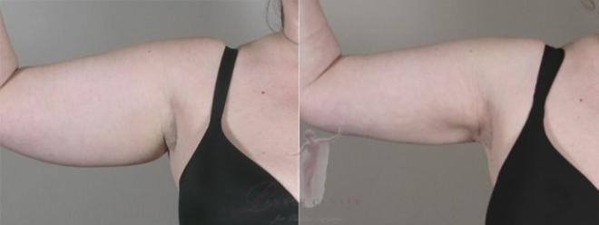 Woman\'s upper arm before and after liposuction