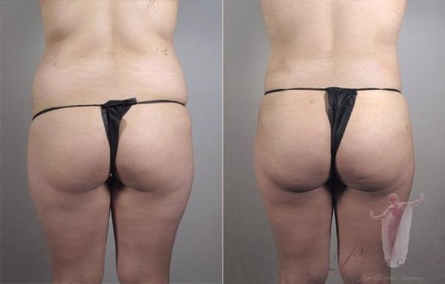 Back view of woman before and after Brazilian butt lift