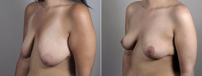 Side view of woman before and after breast lift