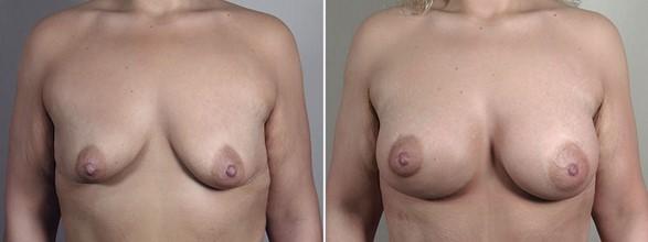 Dual Plane Breast Augmentation
