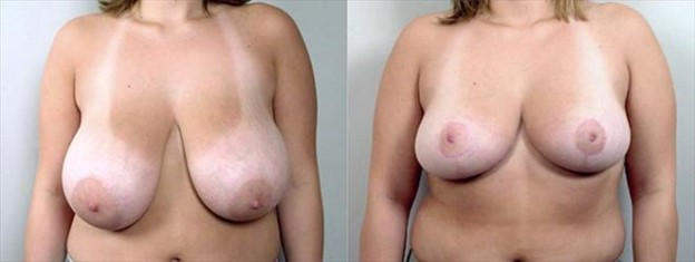 Anchor breast reduction