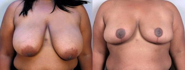 Breast Reduction to Correct Asymmetry