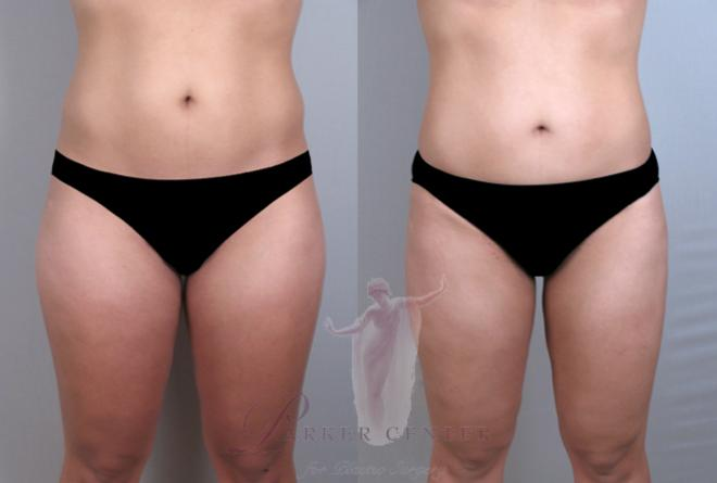 Woman before and after liposuction of the hips