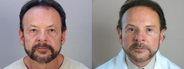 Man before and after facelift