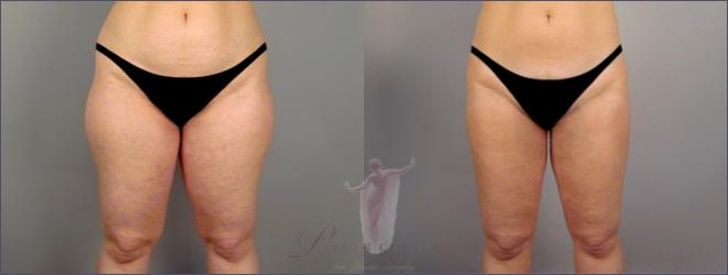 Front view of woman\'s thighs before and after liposuction