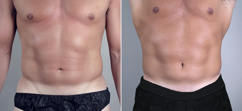 Front view of male patients before and after abdominal liposuction