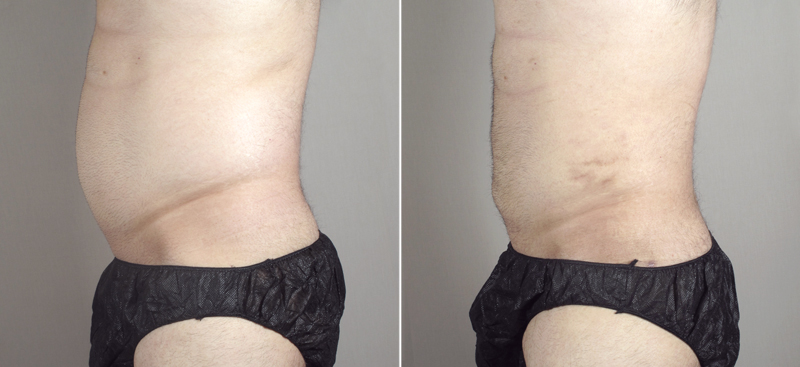 Side view of male patient before and after abdominoplasty