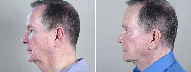 Side view of male patient before and after liposuction
