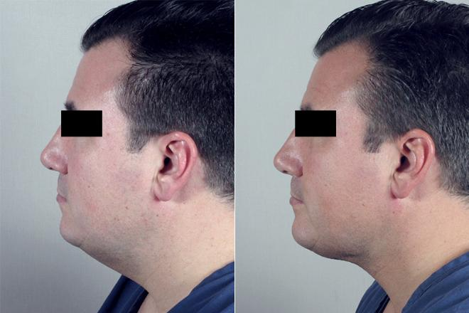Side view of male patient before and after neck contouring