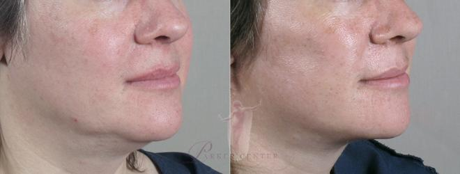 Woman\'s jawline before and after neck liposuction