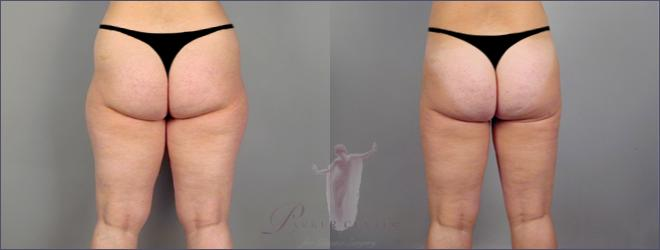 Back view of woman\'s thighs before and after liposuction