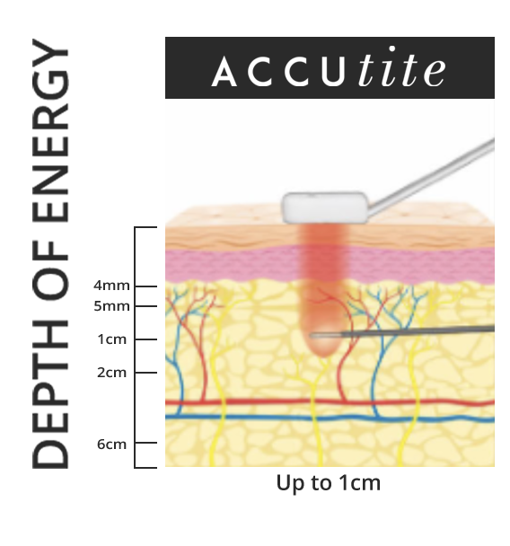 AccuTite penetrates into the skin up to 1 cm