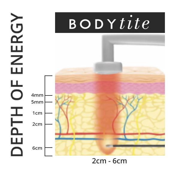 BodyTite penetrates into the skin 2 to 6 cm