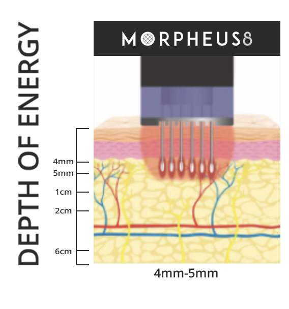 Morpheus8 penetrates 4 to 5 mm into the skin