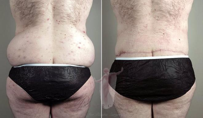 Rear view of man before and after body lift