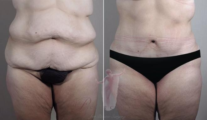 Woman\'s stomach before and after body lift