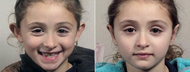 Young girl before and after otoplasty
