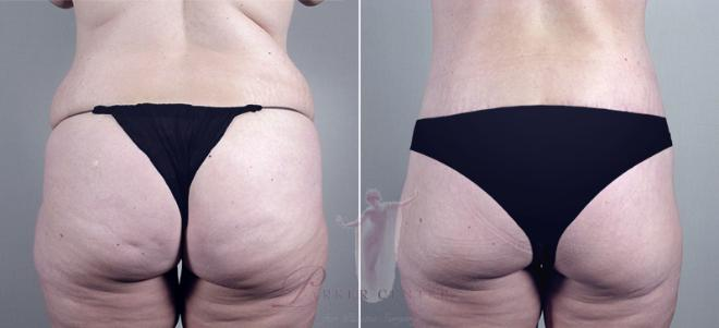 Woman\'s backside before an after body lift surgery