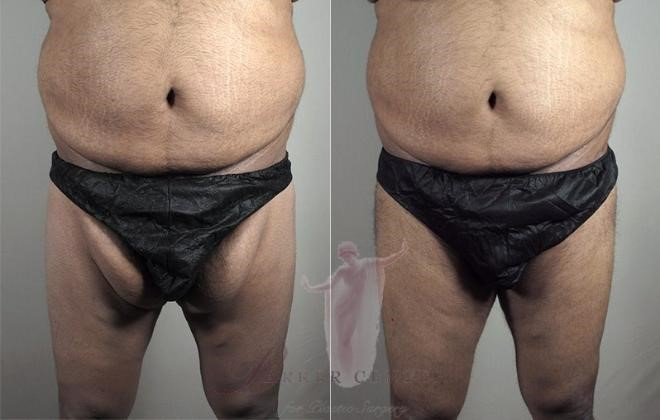 Thigh lift for men before and after photos