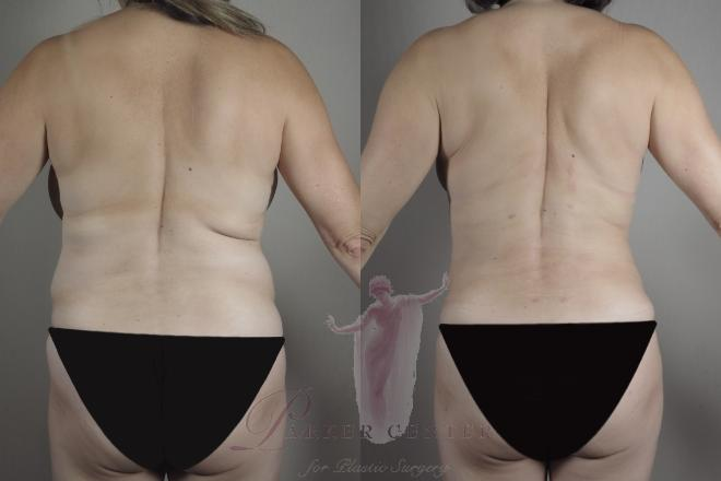 Woman\'s back before and after BodyTite and liposuction
