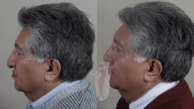 Man\'s profile before and after rhinoplasty