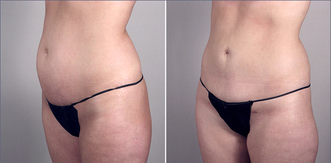 New Jersey Tummy Tuck Image